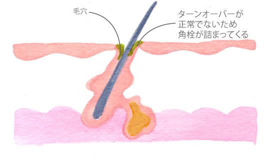 nikibi_mechanism_02